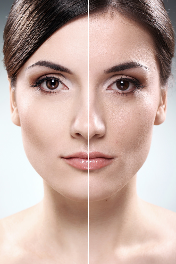 itaewon botox for foreigners